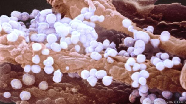 H1N1 flu virus particles, SEM